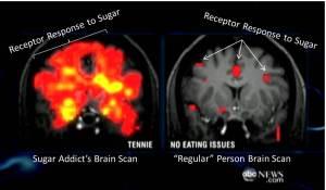 Sugar-Brain